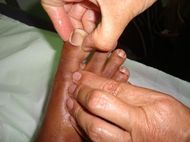 Stage Digi-puncture, auto- massage, Do In